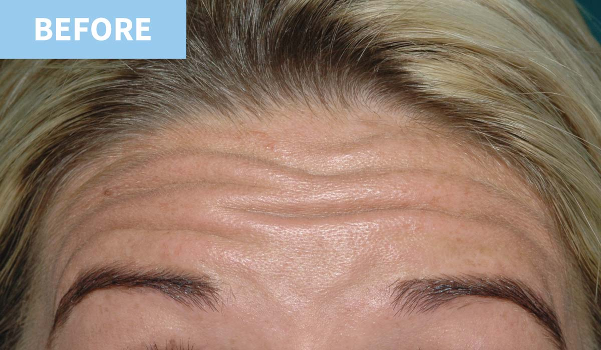 Anti Wrinkle 1