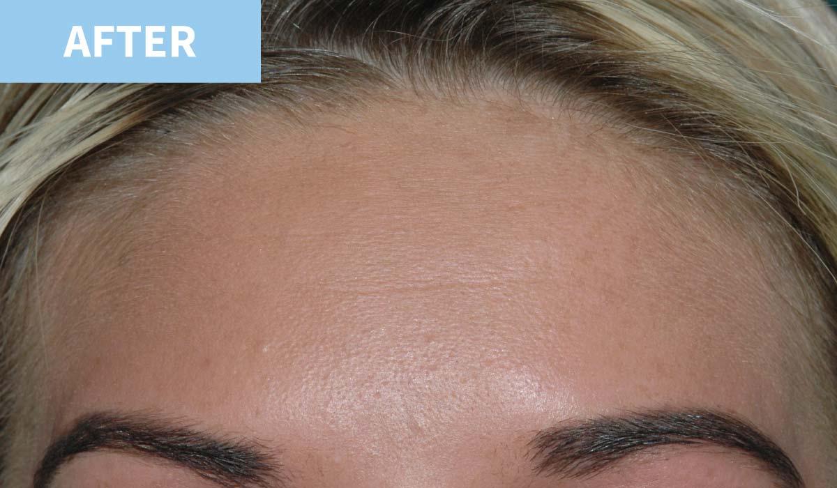 Anti Wrinkle 2