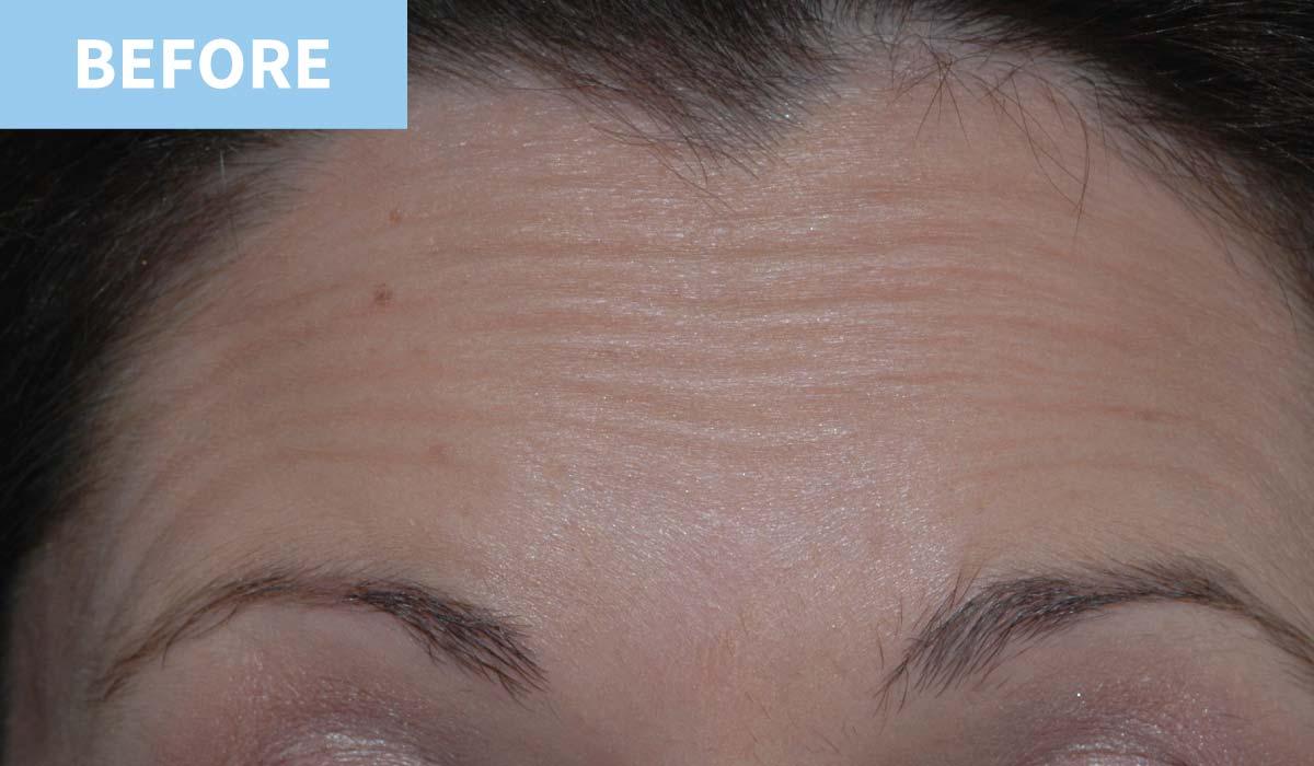 Anti Wrinkle 3