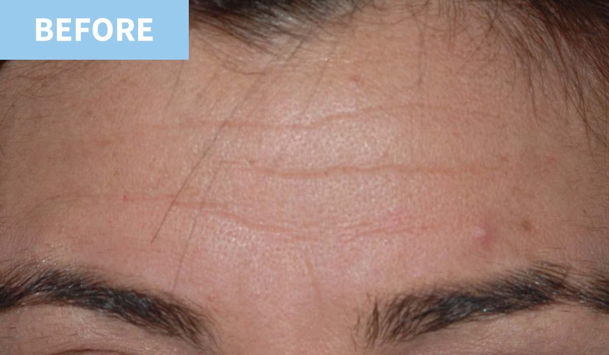 Anti Wrinkle 5