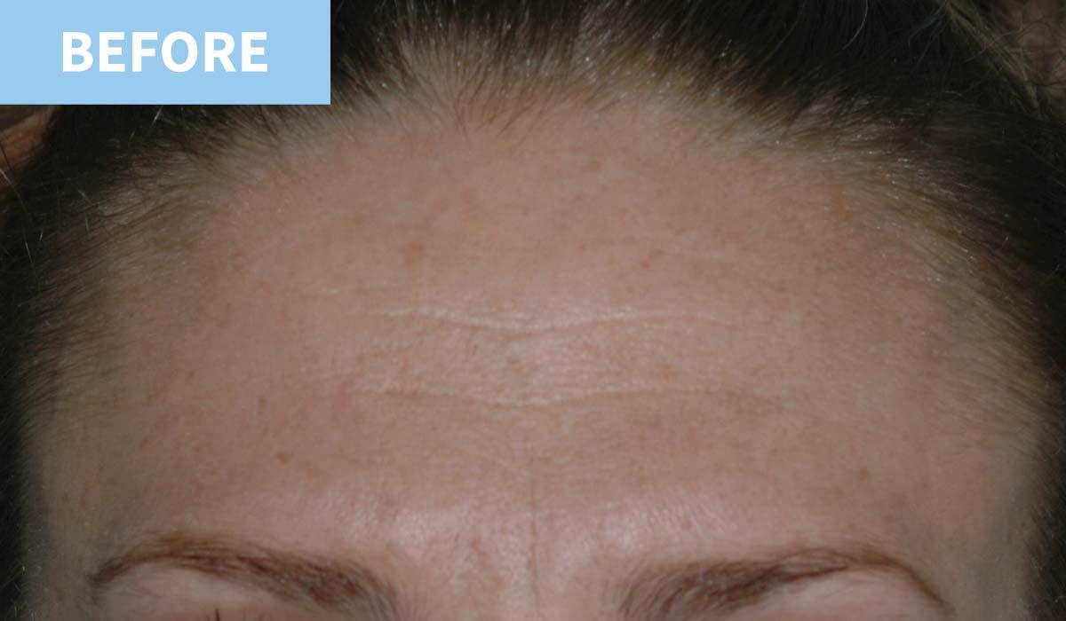 Anti Wrinkle 7