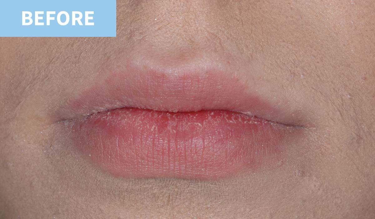 Lip Fillers 1