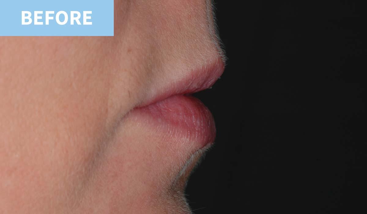 Lip Fillers 11