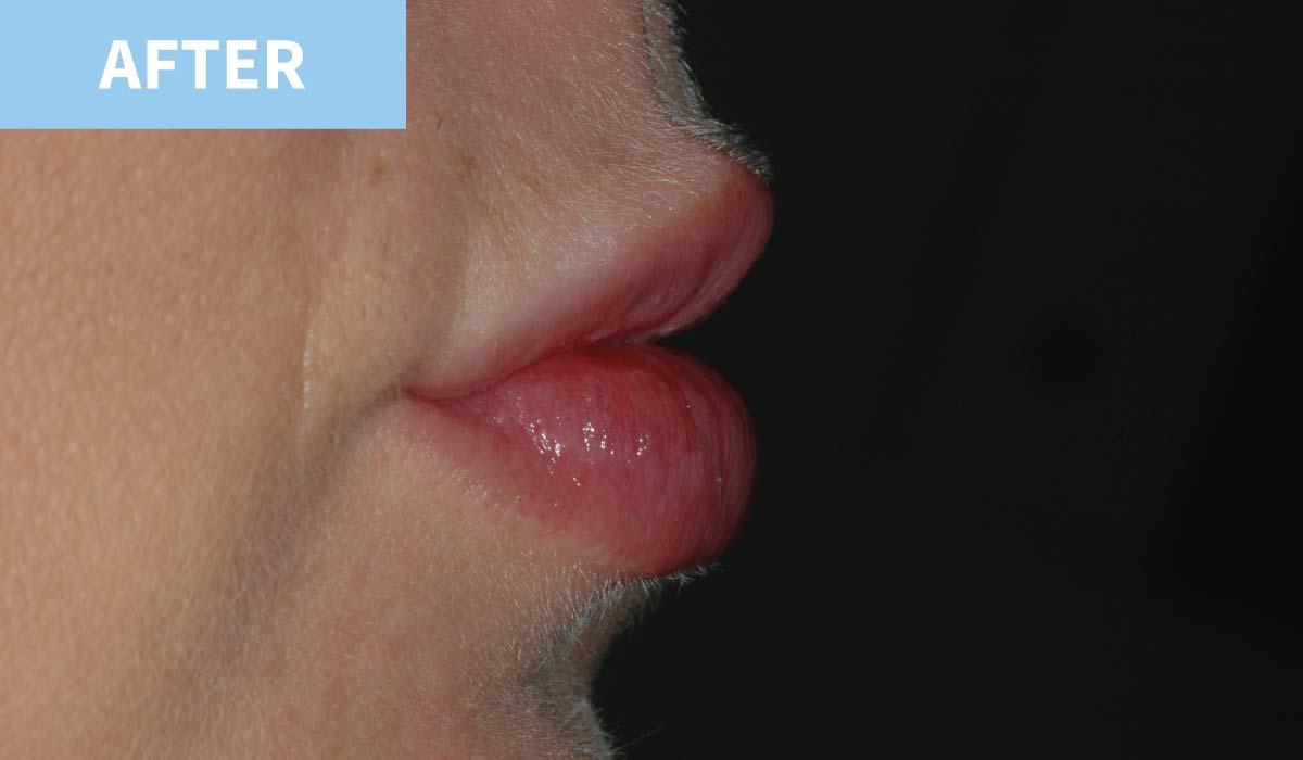Lip Fillers 12