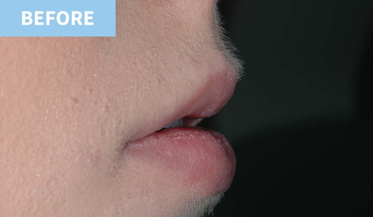 Lip Fillers 5