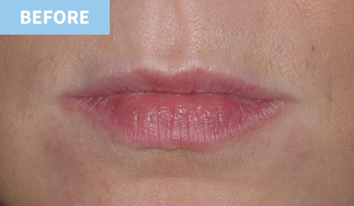 Lip Fillers 7