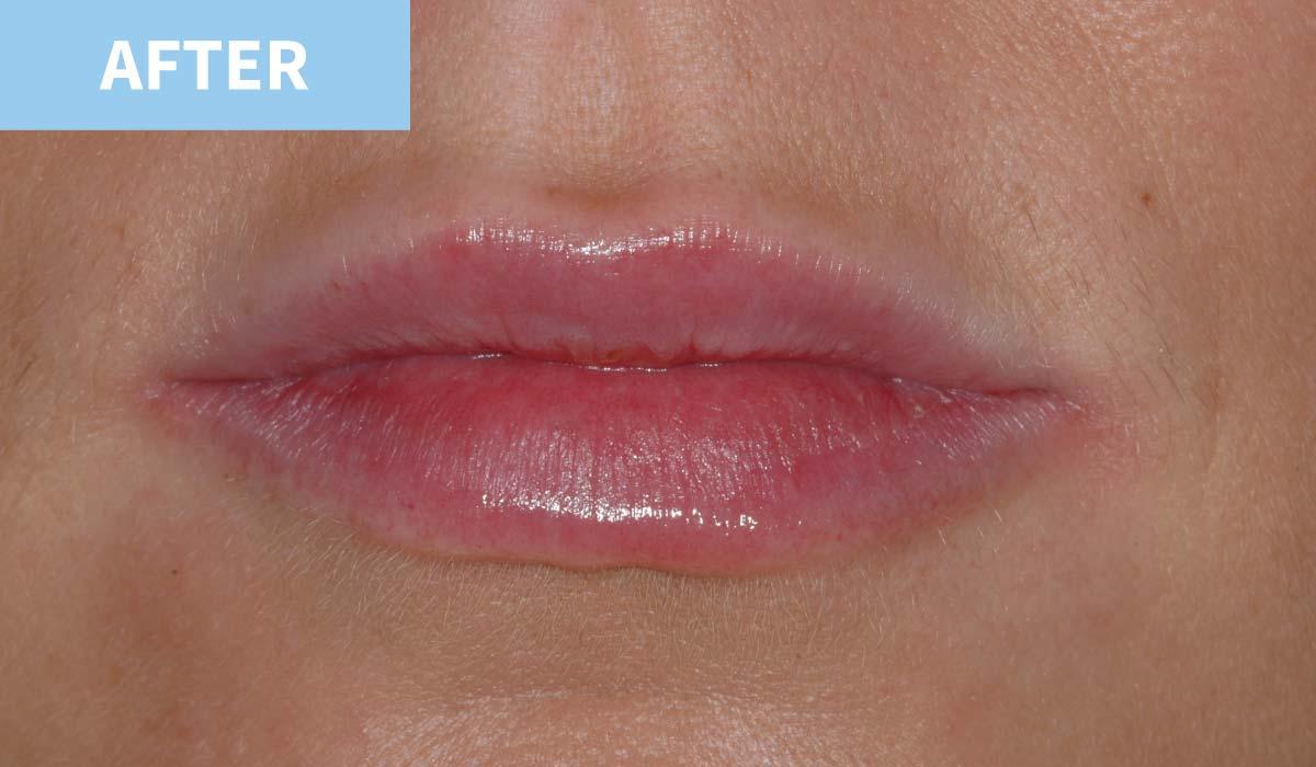 Lip Fillers 8