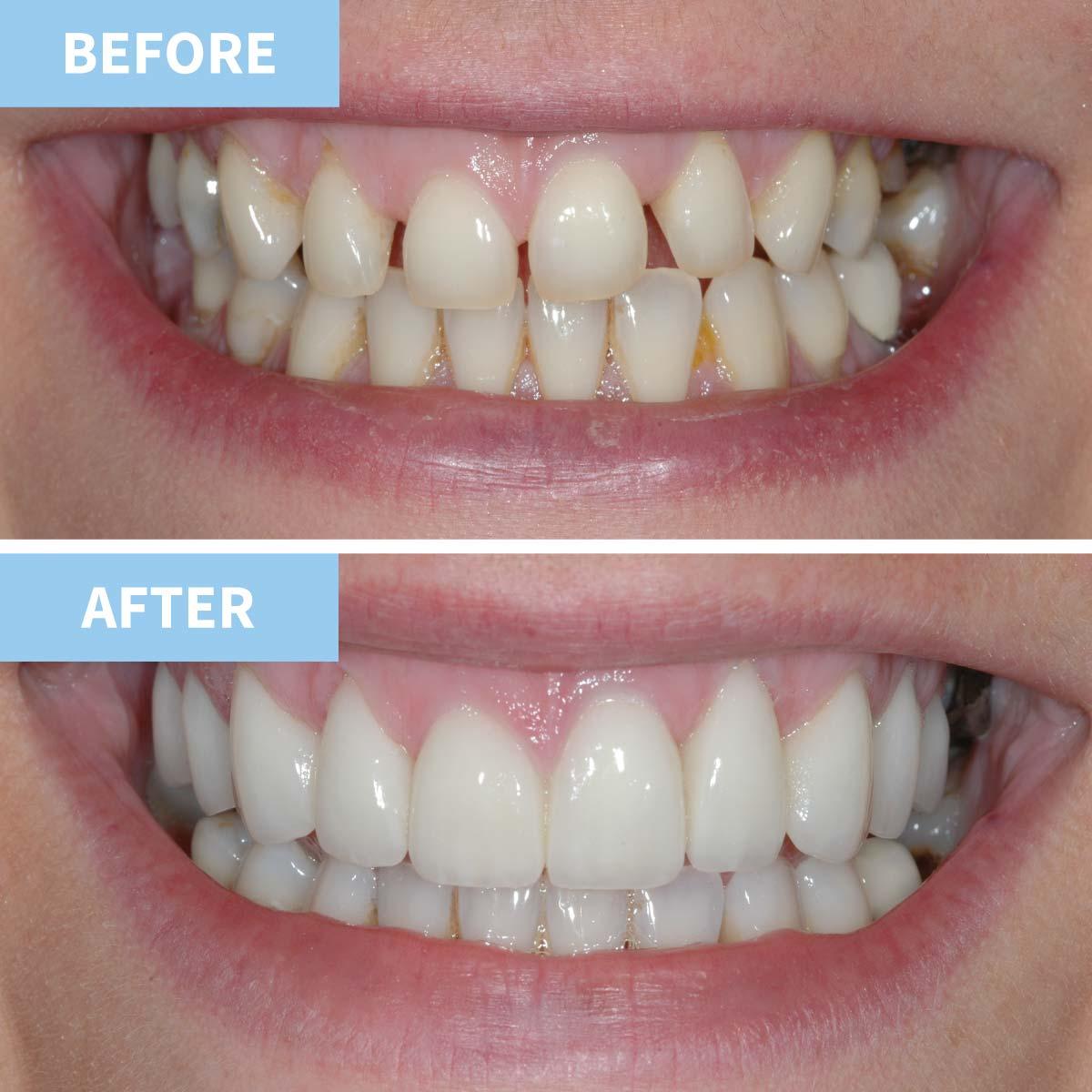 Smile Design 8