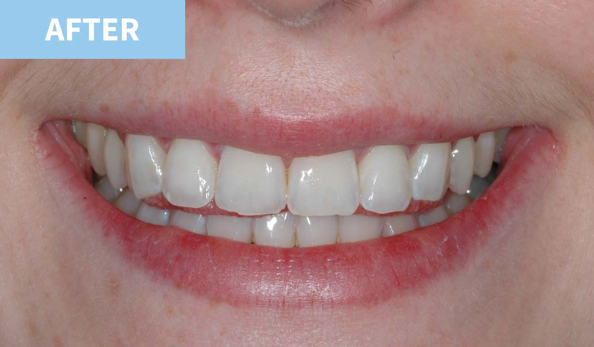 Teeth Whitening 10