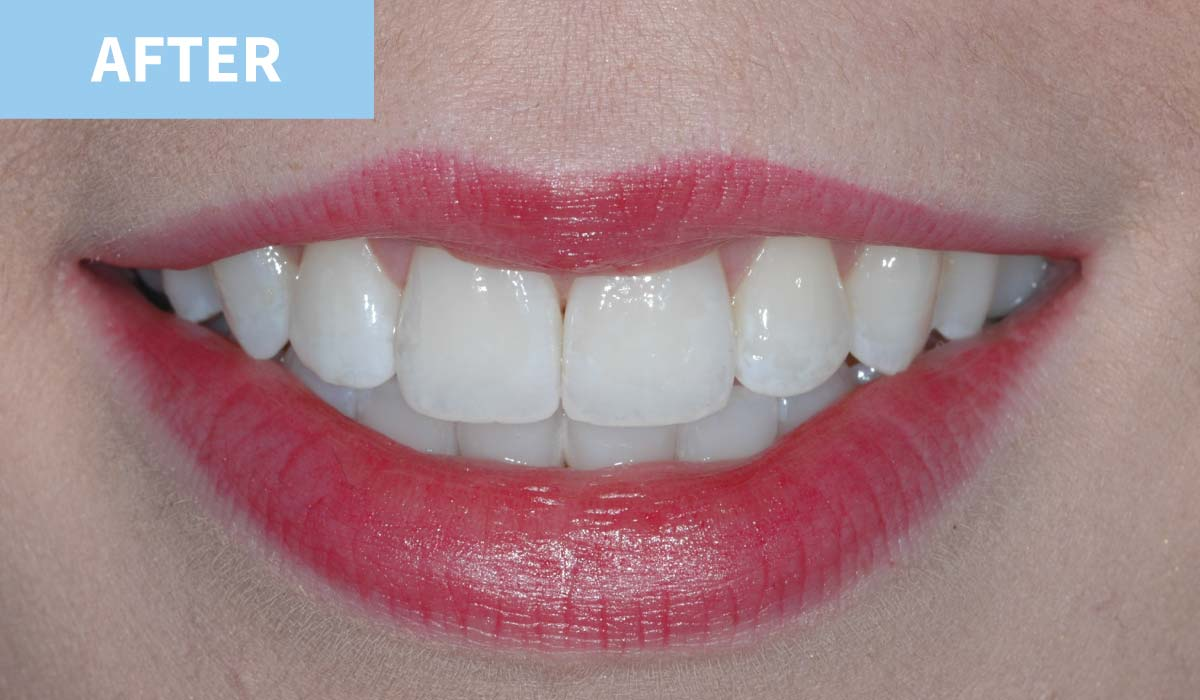 Teeth Whitening 12