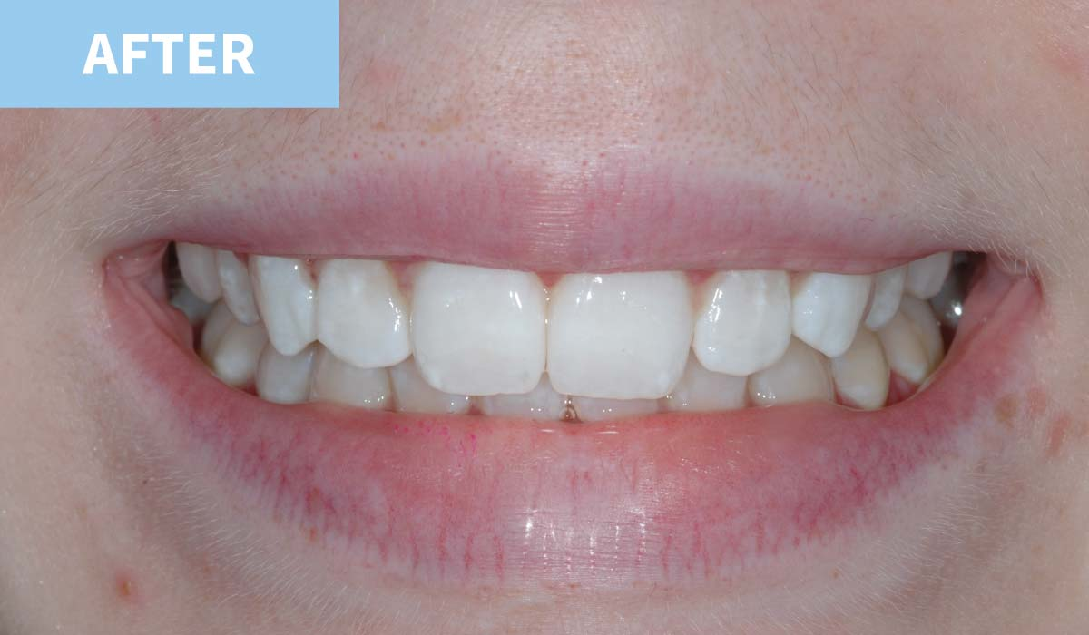 Teeth Whitening 6