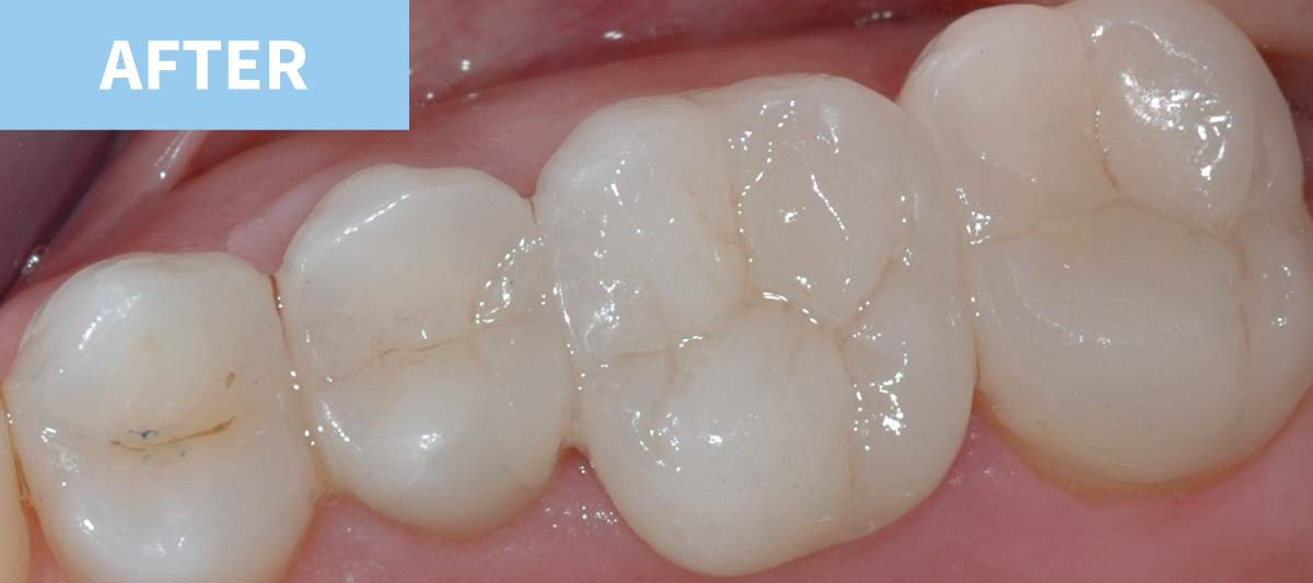 White Fillings 2